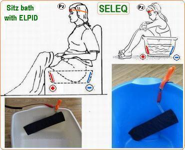 SELEQ- Sitz bath with ELPID
